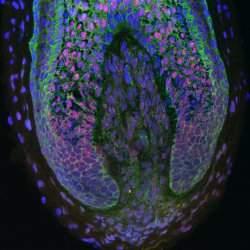 O cultivo de cabelo humano em laboratório foi o experimento recente que trouxe mais esperança na luta contra a calvície.[Imagem: Claire Higgins/Christiano Lab/Columbia University Medical Center]