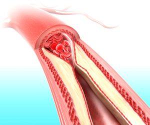 colesterol-ruim